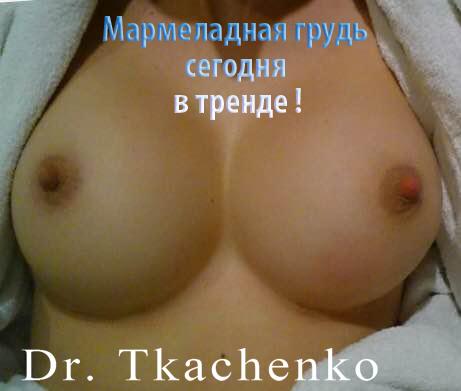 Мармеладная-грудь-увеличение-груди