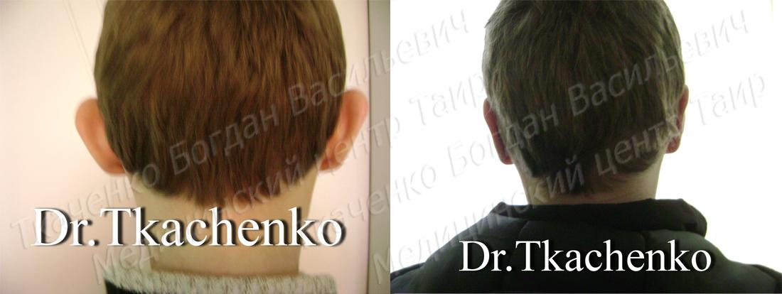 Фото-до-и-после-коррекции-ушей-1 (1)