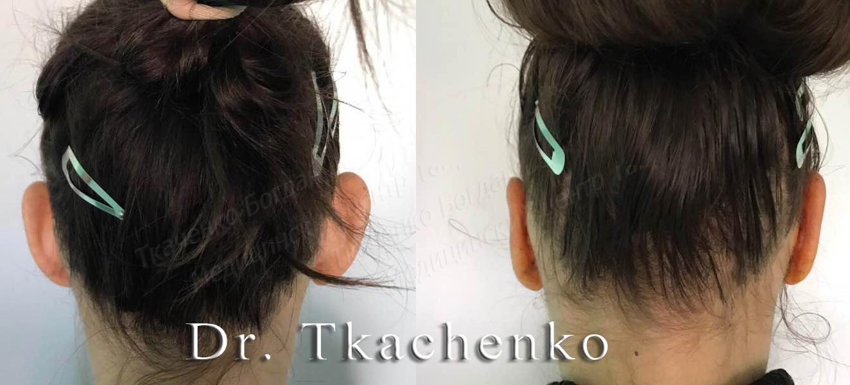 Фото-до-и-после-коррекции-ушей-1