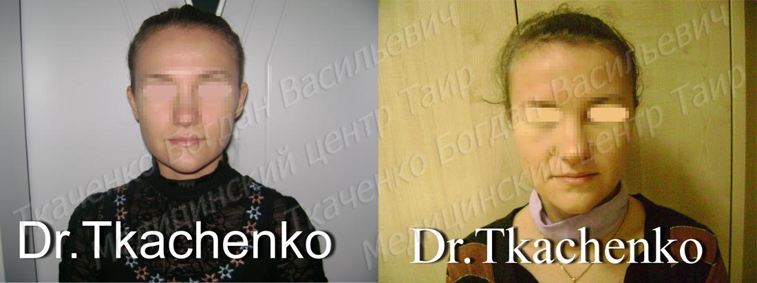 Фото-до-и-после-коррекции-ушей-4
