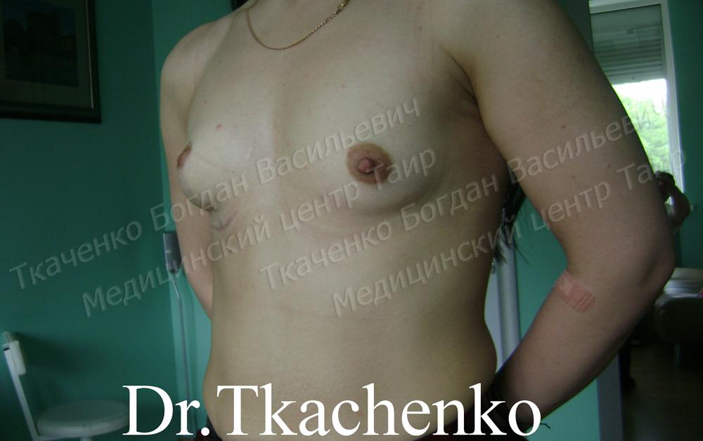 Фото-до-и-после-редукционной-мастопексии-4