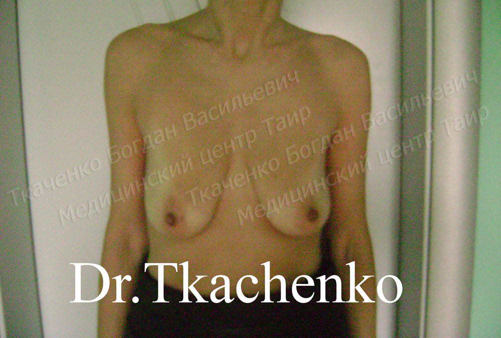 Фото-до-и-после-увеличение-груди-2