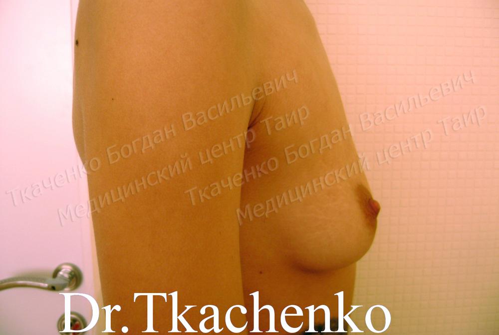 Фото-до-и-после-увеличение-груди-3 (2)