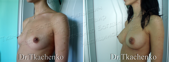 Фото-до-и-после-увеличение-груди-3 (3)