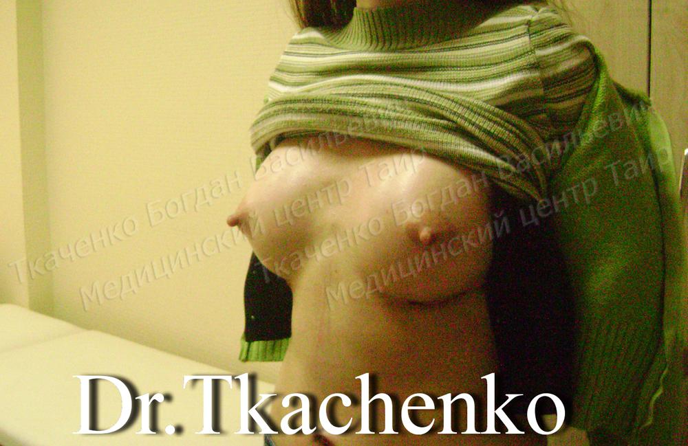 Фото-до-и-после-увеличение-груди-4 (2)