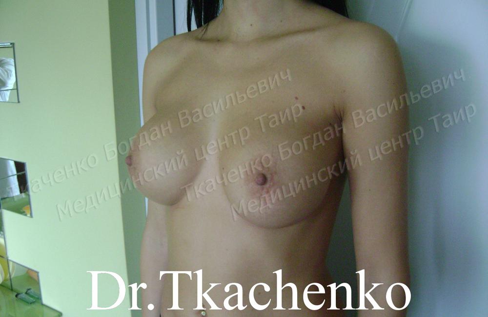 Фото-до-и-после-увеличение-груди-4 (3)