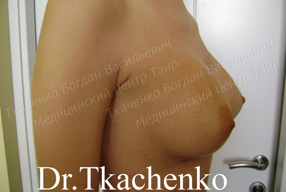 Фото-до-и-после-увеличение-груди-4