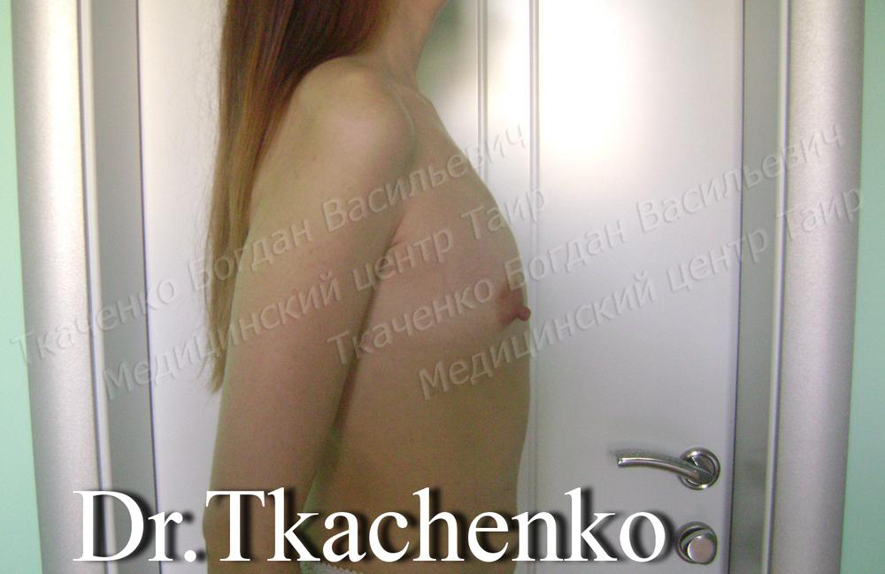 Фото-до-и-после-увеличение-груди-5 (1)