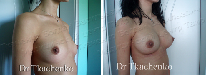 Фото-до-и-после-увеличение-груди