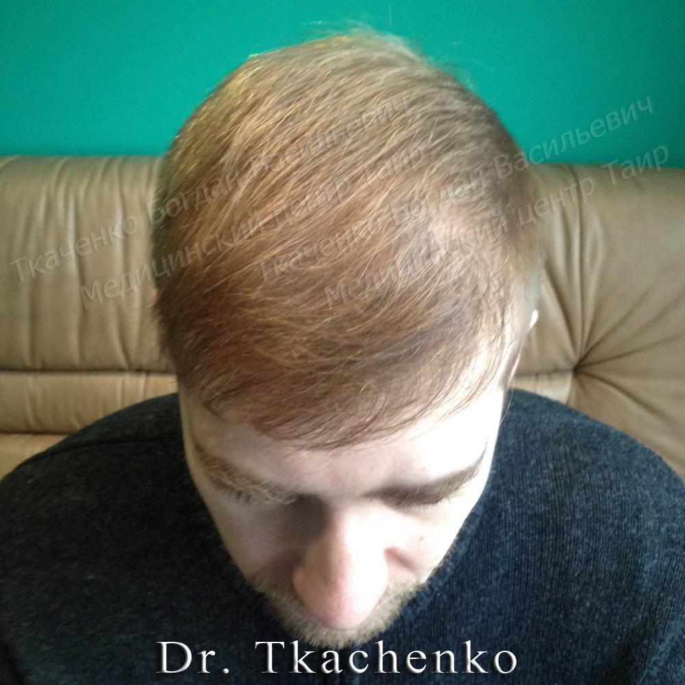 Фото-после-пересадки-волос-1