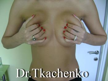 Эндопротезирование груди маммопластика
