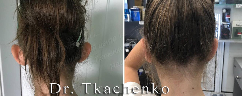 Foto-do-i-posle-korrektsii-ushey-Otoplastika-2 (1)