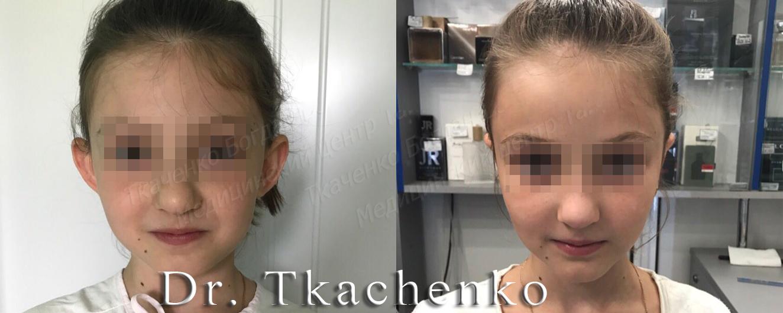 Foto-do-i-posle-korrektsii-ushey-Otoplastika